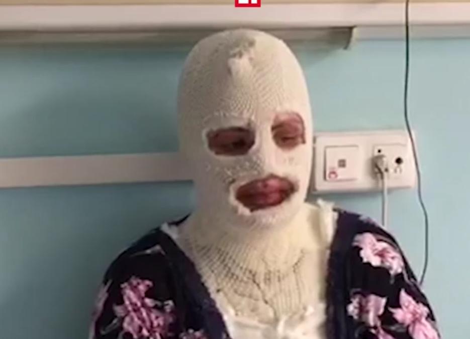 Мужчина сжег лицо собственной девушке из-за фото собаки вПодмосковье